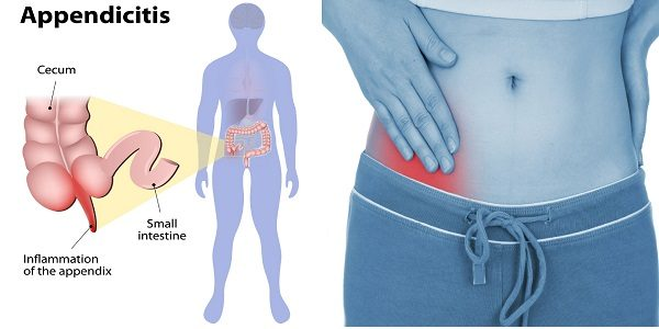 appendicitis-causes-symptoms-treatment