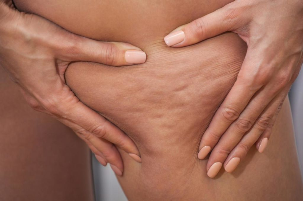 cellulite-casuses-treatments
