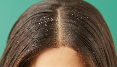 dandruff-causes-symptoms-treatment