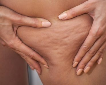 what-is-cellulite-how-to-get-rid-of-it