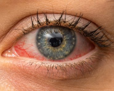 Conjunctivitis-symptoms-treatments-causes