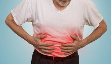 bowel-obstruction-symptoms-treatment