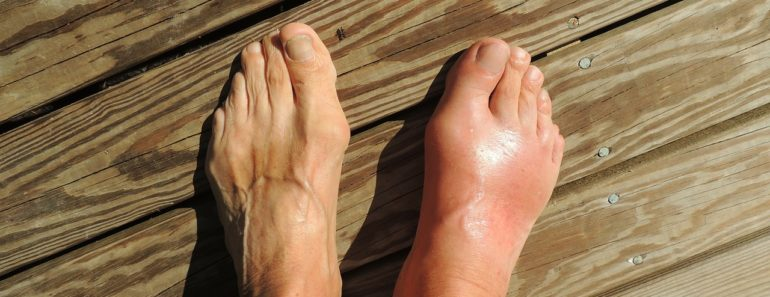 gout-symptoms-treatments-foods-diet