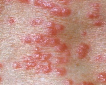 scabies-symptoms-causes-treatments