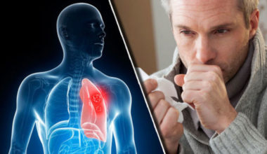 bronchitis-causes-symptoms-natural-treatments
