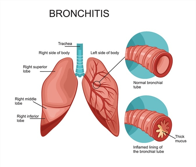 bronchitis-symptoms-natural-remedies